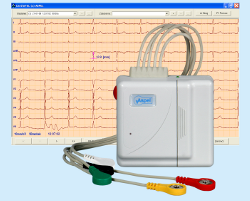 CardioTEL Alfa System NET v.001 Cyfrowy nadajnik sygnału EKG wraz z oprogramowaniem