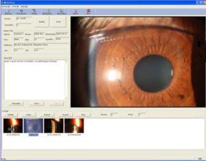 1311319838mediview 300x235 - Cyfrowa lampa szczelinowa Ray-Vision SL-R9