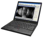 1311325632bscan - Ultrasonograf okulistyczny B-Scan