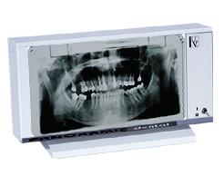 1294394671panoram01 - PANORAM-01 Negatoskop dentystyczny