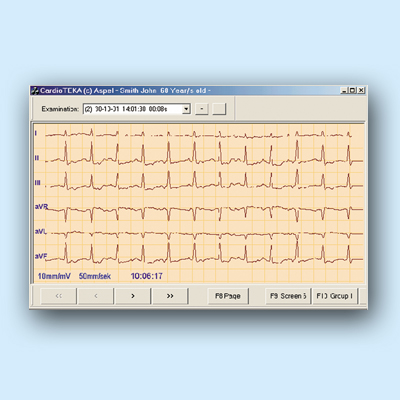 CardioTEKA - oprogramowanie v.001 Oprogramowanie do elektrokardiografów