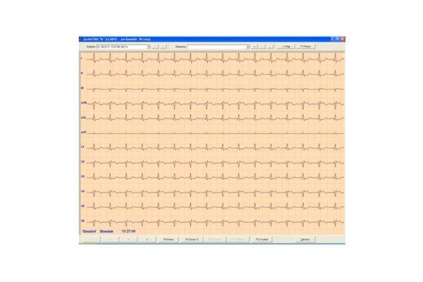 Aparaty EKG  CardioTEKA - oprogramowanie - HL7