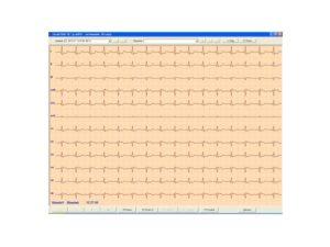 Aparaty EKG CardioTEKA - Oprogramowanie